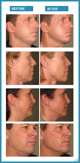 Before and after photos Ultherapy