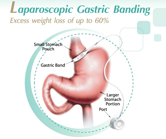Weight Loss Surgery Gastric Laparoscopic Sleeve Bangkok Thailand