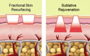 Sublative Rejuvenation Laser Bangkok Thailand