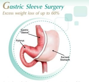 weight loss surgery in Asia
