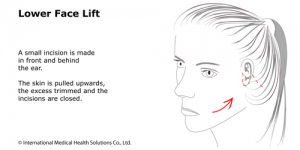 safe neck and jowls lifting aborad