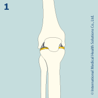 knee_replacement12
