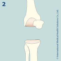 knee_replacement22