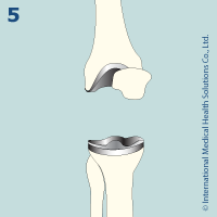 knee_replacement51