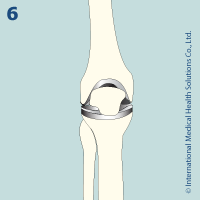 knee_replacement61