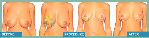 breast lift surgery in Bangkok