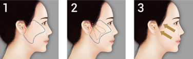 mini facelift or Minimal Access Cranial Suspension Lift(MACS Lift)