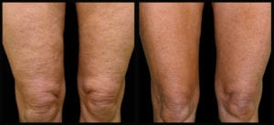 Thermage treatment for laser thigh lifting