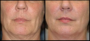 Thermage treatment for face lifting