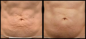 Thermage treatment for abdomen lifting