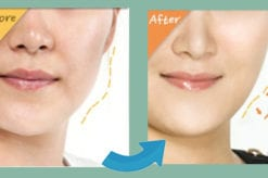 fat injections or fat transfer to face in Bangkok