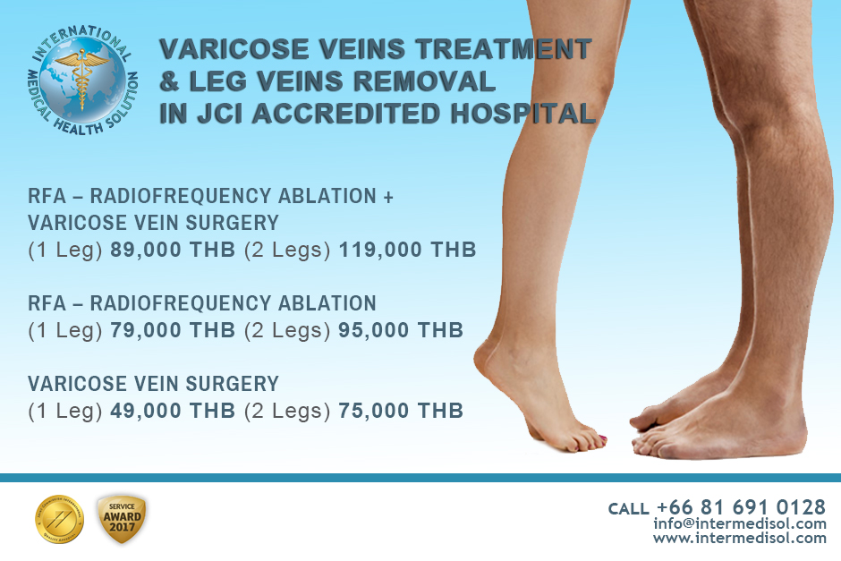 Varicose Leg Vein Treatment in Bangkok, Thailand